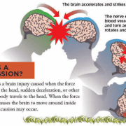 Give Concussions A Rest